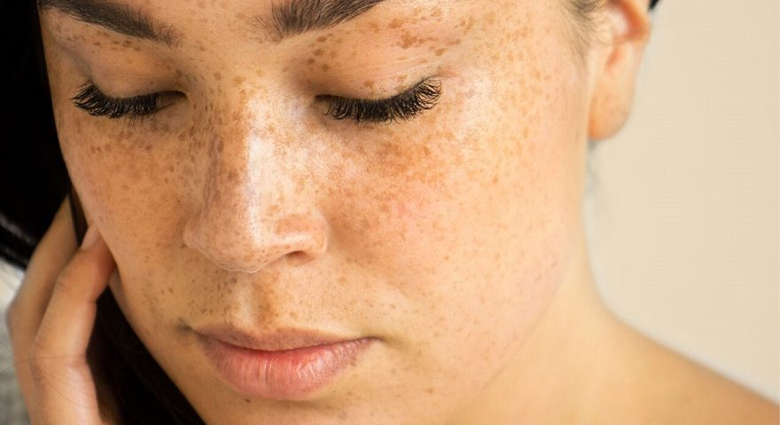 look after your skin naturally this winter